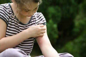 girl with mosquito bite, scratching hand has motion blur